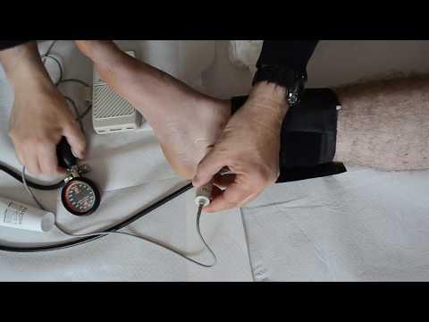 Ce que lhypertension intrapulmonaire