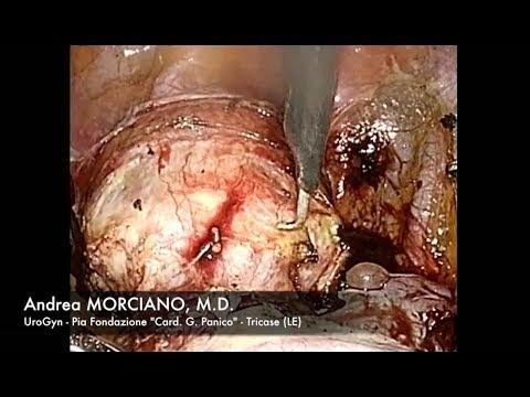 Isterectomia Totale Laparoscopica | Laparoscopic Total Hysterectomy