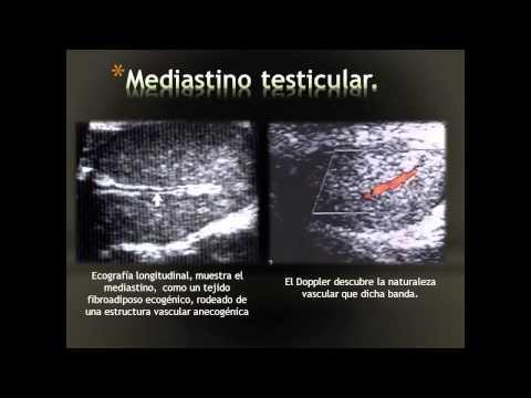 Prostatas elektrostimulācija ārstēšanas cena