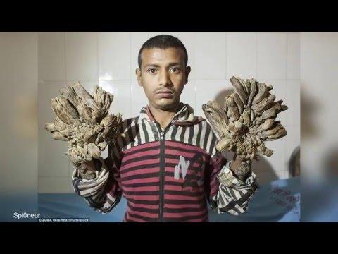 Comme que traiter leczéma des pinceaux des mains aux mains