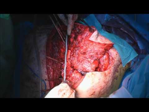 Condilom în perineu