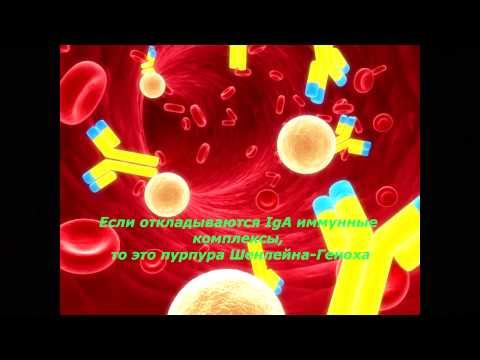 Причины васкулитов