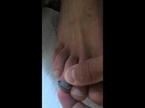 Szyszki na palcach, aby pozbyć
