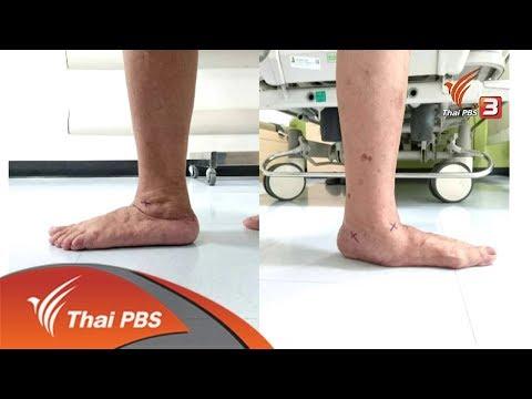 ขาหลังการผ่าตัด halyus valgus