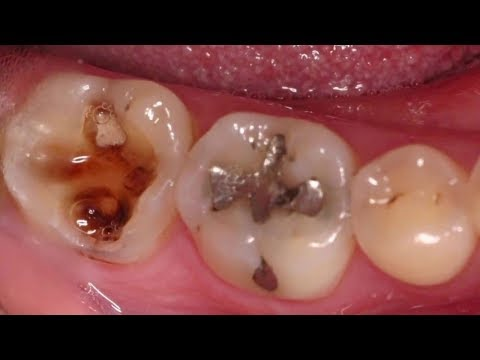 Video Home Remedies for Toothache - Immediate Pain Relief