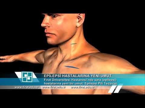 Vagal Sinir Stimülasyonu (VNS) Ameliyatının Detayları