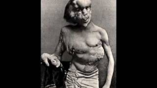 """Reviving the Elephant Man"" (Forensic Reconstruction)"