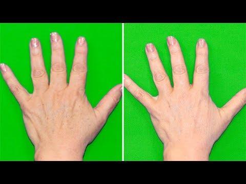 Wie das Ekzem die Nägel beeinflusst