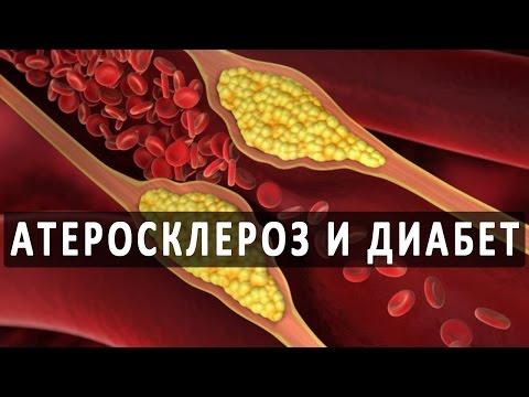 Сахарный диабет и атеросклероз. Физическая реабилитация при атеросклерозе