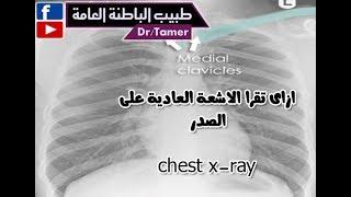تحميل اغاني ازاى تقرا الاشعة العادية على الصدر chest X-ray MP3