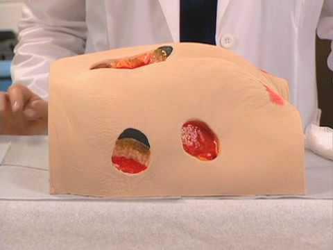 Video Moist Wound Healing