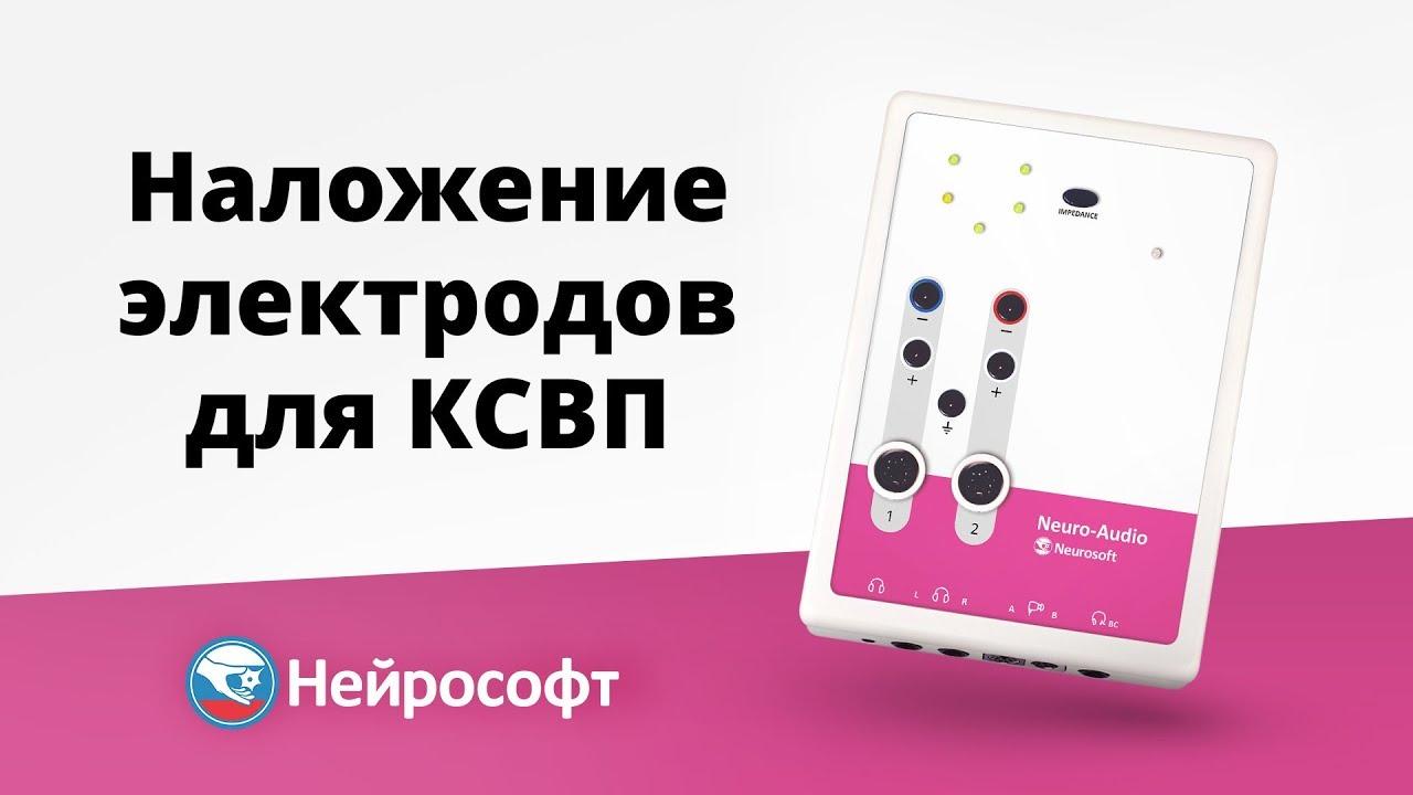 Наложение электродов для регистрации КСВП