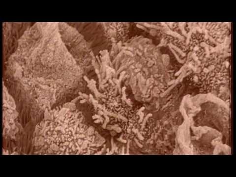Atopitchesky la dermatite du menu de lenfant