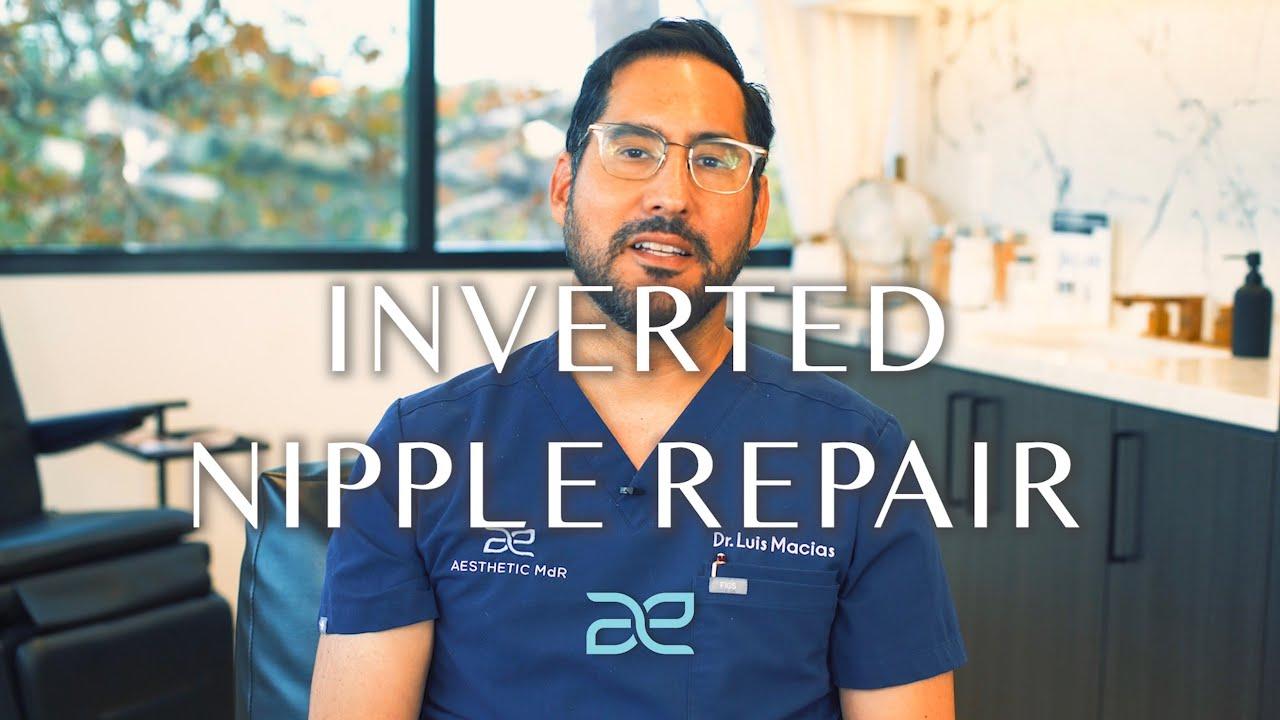 Image Thumbnail of Dr. Macias talking about Inverted Nipple Repair