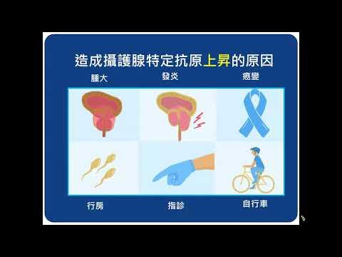 2021.5.2早期攝護腺癌的診斷與治療-從PSA升高說起(王樹吉醫師)