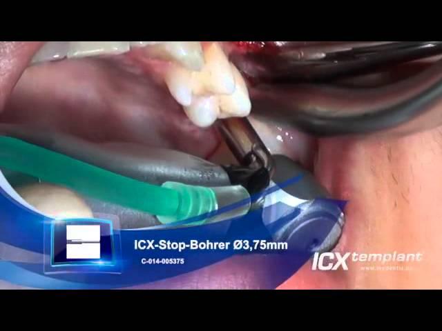 Einzelzahnimplantation im Oberkiefer mit Knochenaugmentation