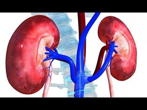 Hipertenzija u vrućim zemljama