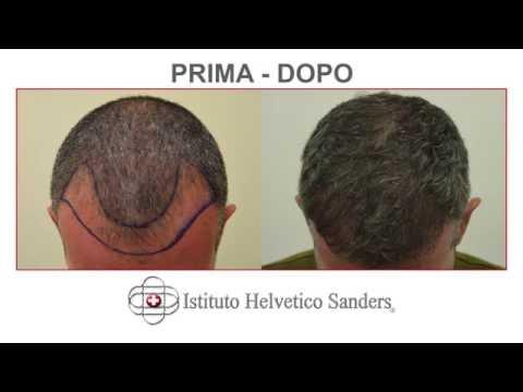 Produzione di un tyansha da una perdita di capelli