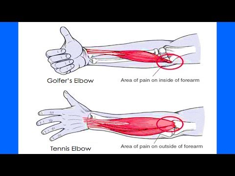 Video How To Cure Tennis Elbow Fast | Natural Treatment For Tennis Elbow Pain | Tennis Elbow Stretches