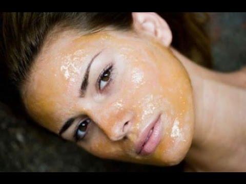 Crema di risposte di cosmetici di corteccia da lentiggini