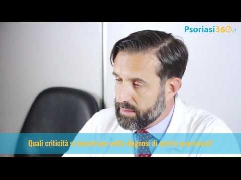 Se lozonoterapiya da psoriasi aiuterà