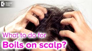 Boils On Scalp Filled With Pus.  Causes, Treatment - Dr. Rashmi Ravindra| Doctors' Circle