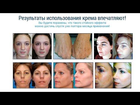 Плазмолифтинг лица при пигментации