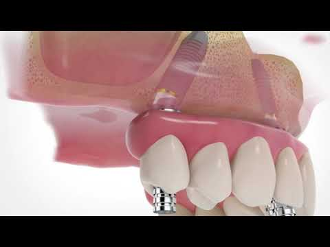 Excellent All on 4 at Cancun Dental Specialists, Mexico