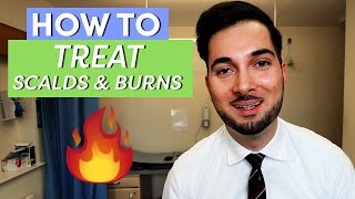 Burns | How To Treat Burns | How To Treat A Burn