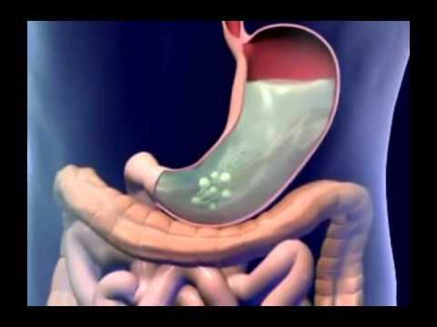 I vermi di un ascarid e pinworm firmano il trattamento