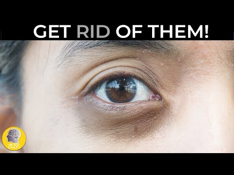 HOW TO GER RID OF DARK EYES AND EYES BAGS!