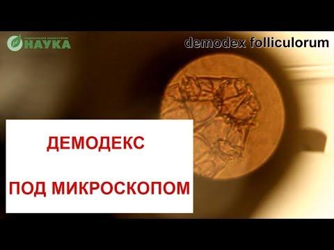 Признаки глистов у человека в кале