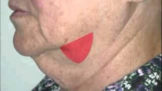 Jowls: Eliminating Facial Sagging