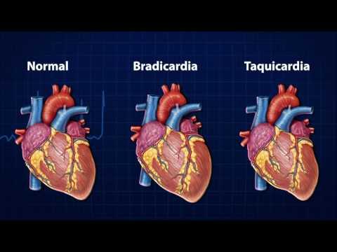 Reduzir a pressão sem medicação. tratamento da hipertensão sem comprimidos