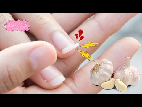 Lamizil la medicina contra el hongo de las uñas