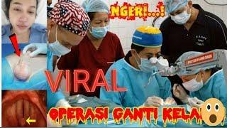 Viralllll.... Beredar Video Operasi TRANSGENDER LUCINTA LUNA. Cekidottt
