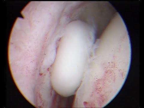 Noci di ernia e osteocondrosi
