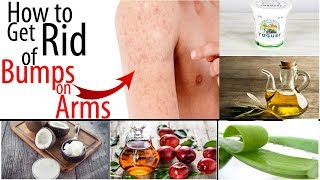 How to Get Rid of Tiny Red Bumps, Rashes from Arms, || Chicken Skin Treatment