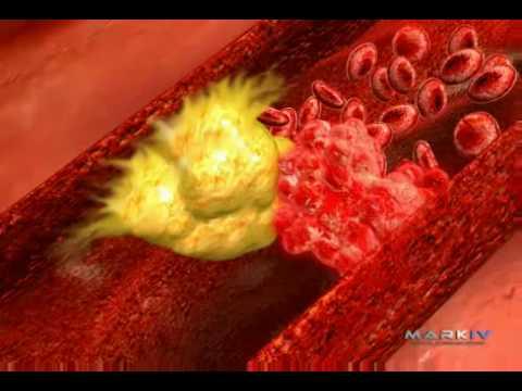 Dispozitiv de hipertensiune cu laser
