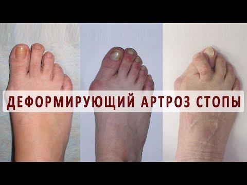 Боли в области тазобедренного сустава при длительной ходьбе