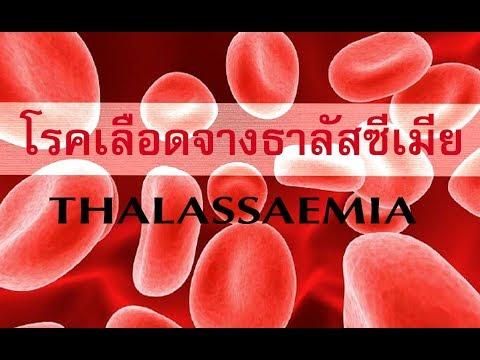 การรักษาสังกะสีวาง salitsilovo- สำหรับโรคสะเก็ดเงินเช่น