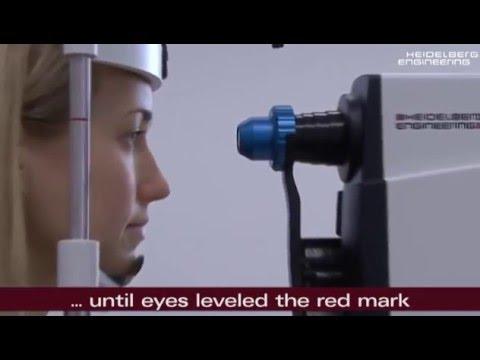 Picături pentru ochi și vedere