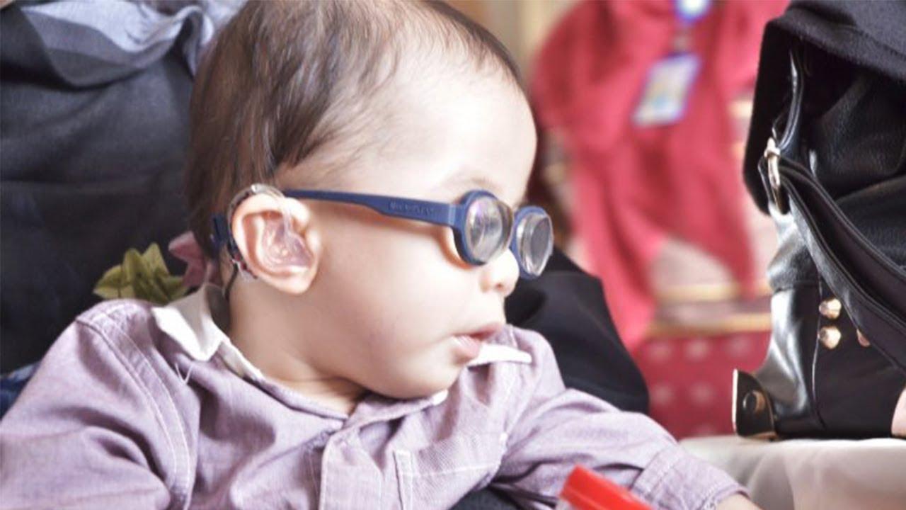 Lantaran Penyakit Ibunya, Bayi 10 Bulan Harus Pakai Kacamata Plus 20 dan Gunakan Alat Bantu Dengar