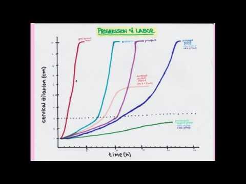 Az ornidazol szedése giardiasis kezelésére