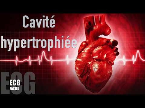 Hypertension 3 degrés de risque Etape 4