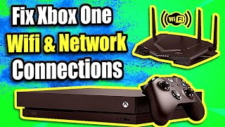 FIX XBOX ONE not connecting to WIFI and Network Issues    (5 Steps and More)