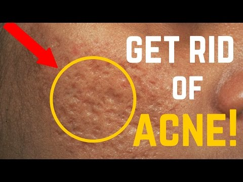 Video 5 Ways to Remove Acne Scars, Dark Spots & Fine Lines FAST!