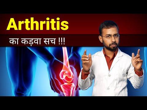 Milyen gyógyszerek a 2. fokozatú artrózis kezelésére