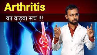 Arthritis treatment in Hindi | joint pain treatment | arthritis symptoms | how to cure arthritis