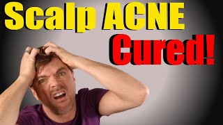 Scalp Acne Cure   My Expert tips to get you CLEAR fast!   CHRIS GIBSON